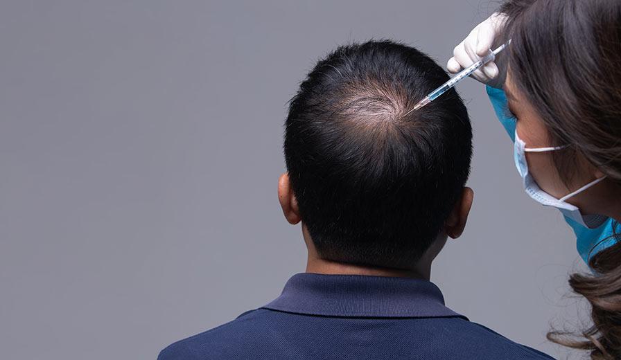 Tre frågor att ställa innan du genomför en hårtransplantation